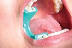 LogiBloc in Patient's Mouth